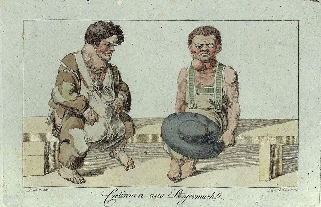 An illustration of cretinism from the 1800s, with an emphasis on goiter.